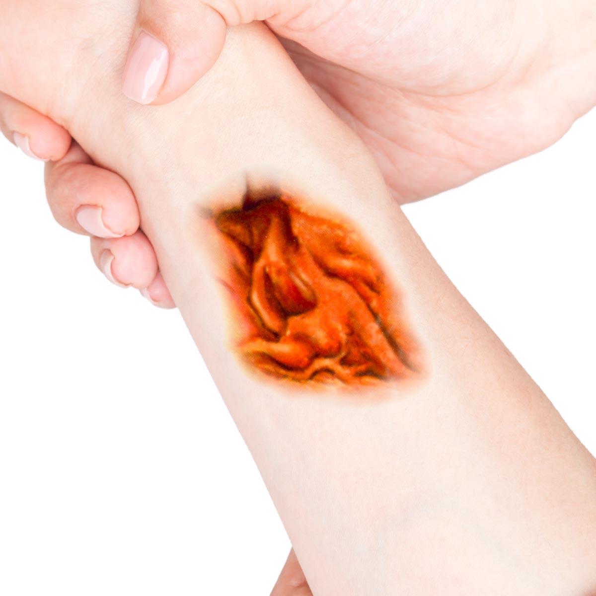 Tatuering sår, skrovligt