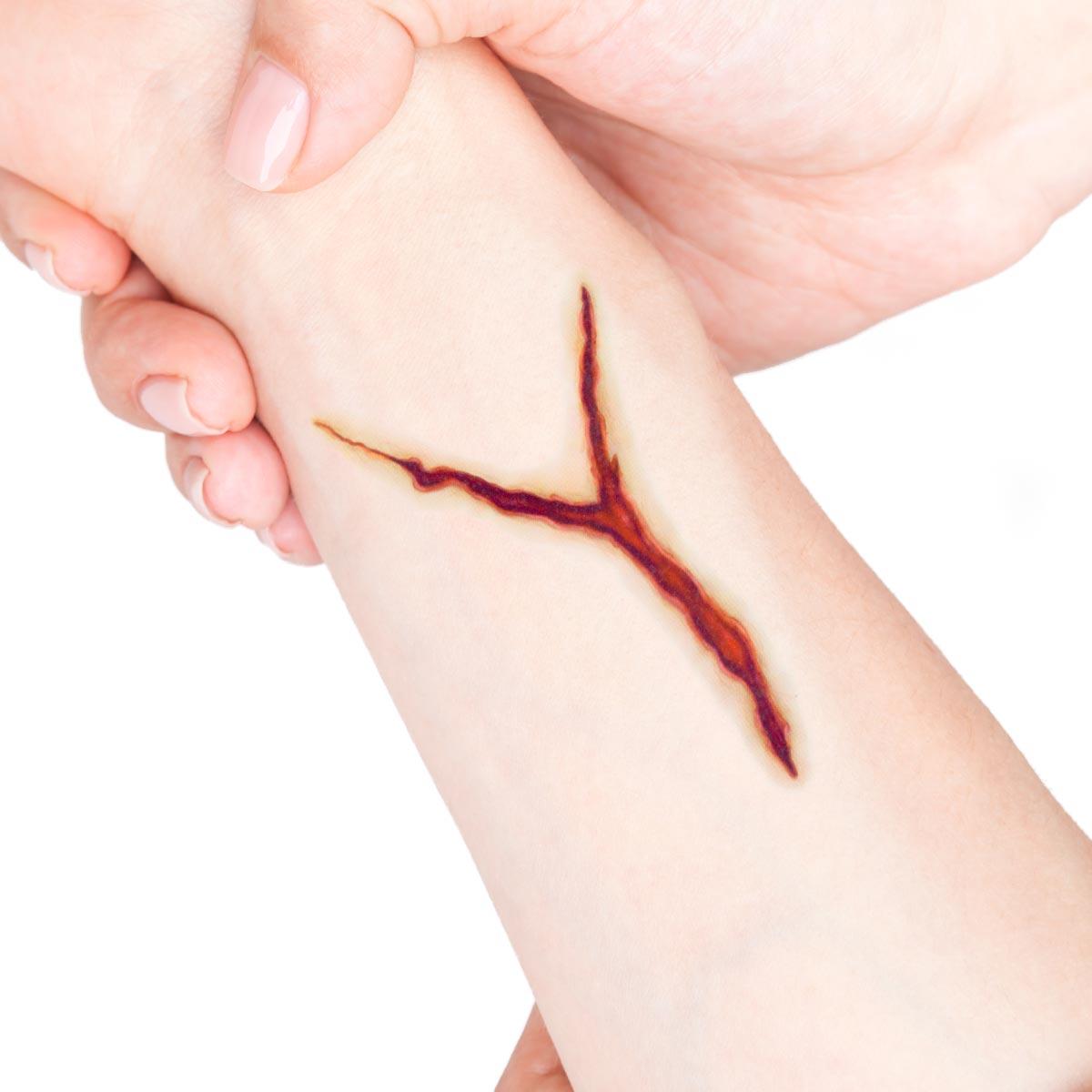 Tatuering sår, flik med skärsår